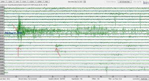 16092015_2256Chile8_3_aftershocks